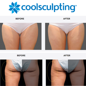 CoolSculpting_before_and_after_legs.png