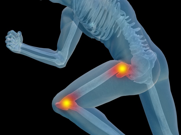 Functional Medicine Treatments to Diagnose, Prevent and Reverse Osteoporosis Naturally