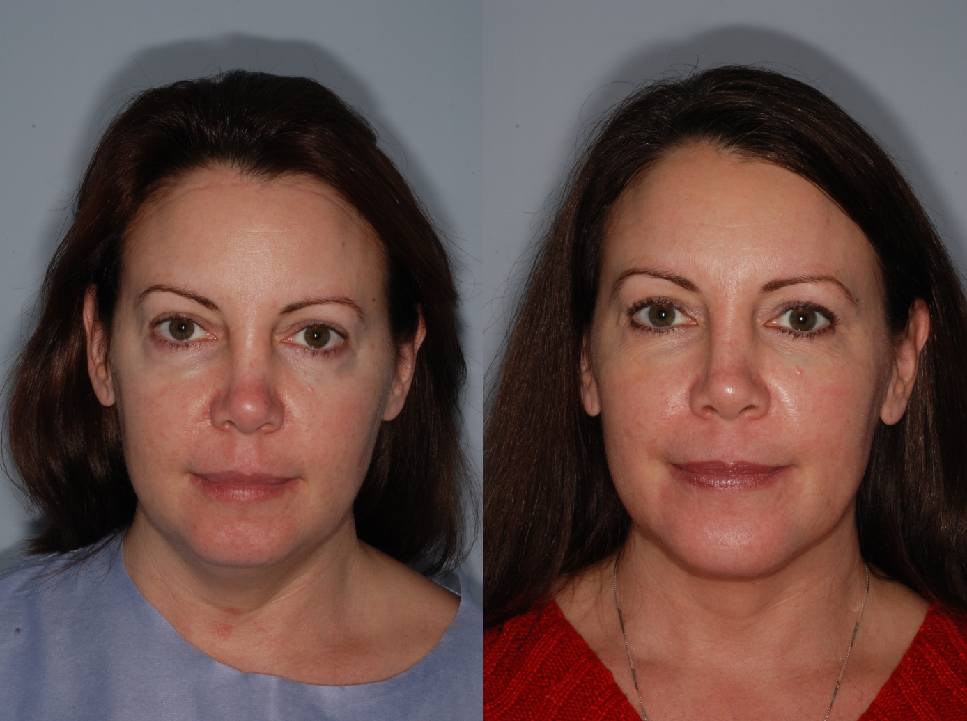 liquid facelift laser face lift patient