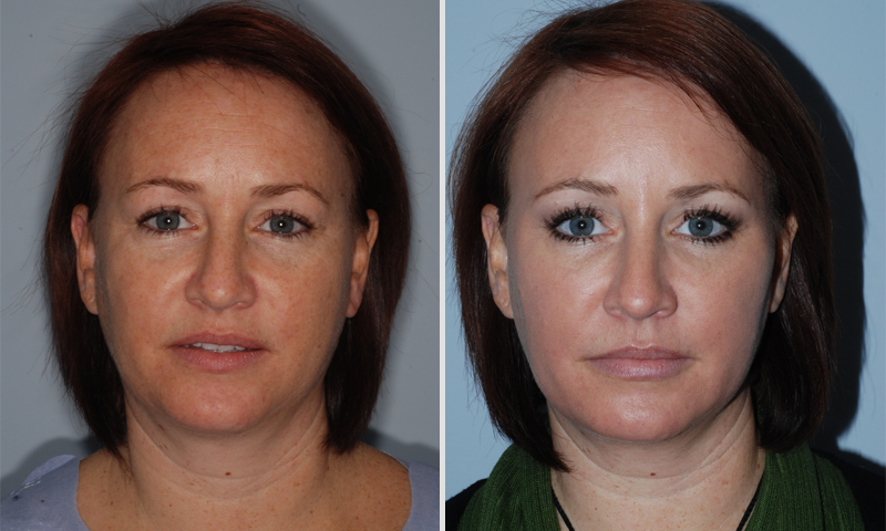 eye lift and filler for hollow eyes