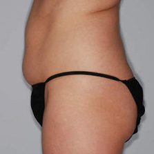 Liposuction before photo