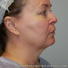 Neck lift before photo