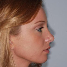 Nose Reshaping after photo
