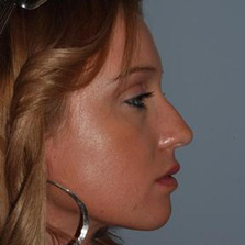 Nose Reshaping before photo
