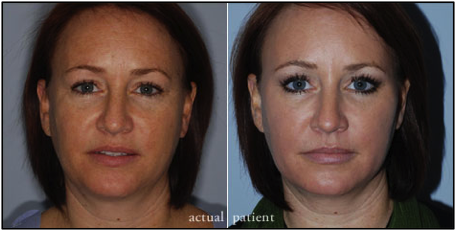 patient injectables