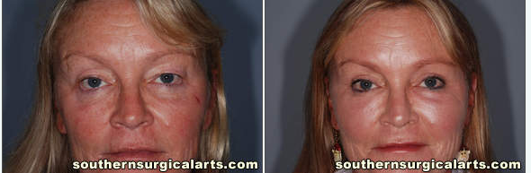 Eyelid lift or blepharoplasty