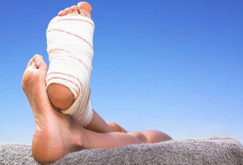 Ankle surgery tips