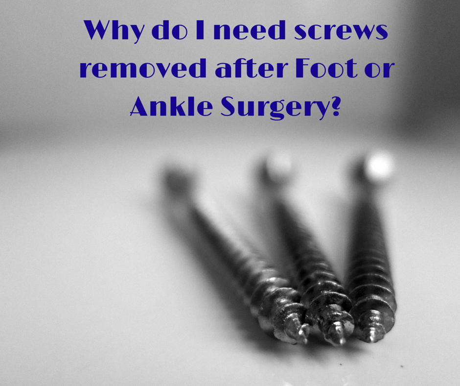 Why_do_I_need_screws_removed_after_surgery