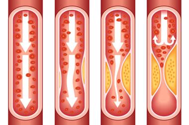 cardiology-conditions-coronary-artery-disease-cad