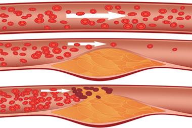 cardiology-conditions-heart-arrhythmias
