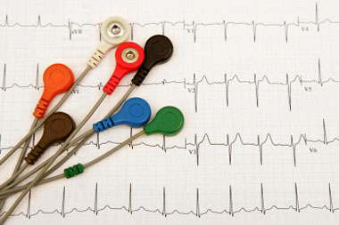 cardiology-conditions-peripheral-artery-disease-pad
