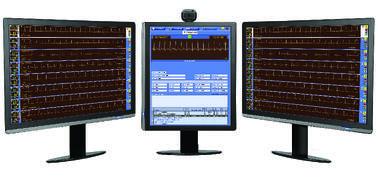 Cardiovascular Monitoring System : Versacare cardiac rehab telemetry monitoring system