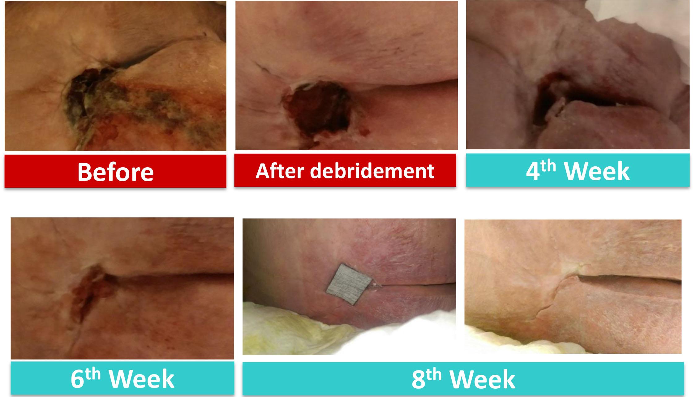 kocarbon ag silver dressing case study case 3 sacral pressure ulcer
