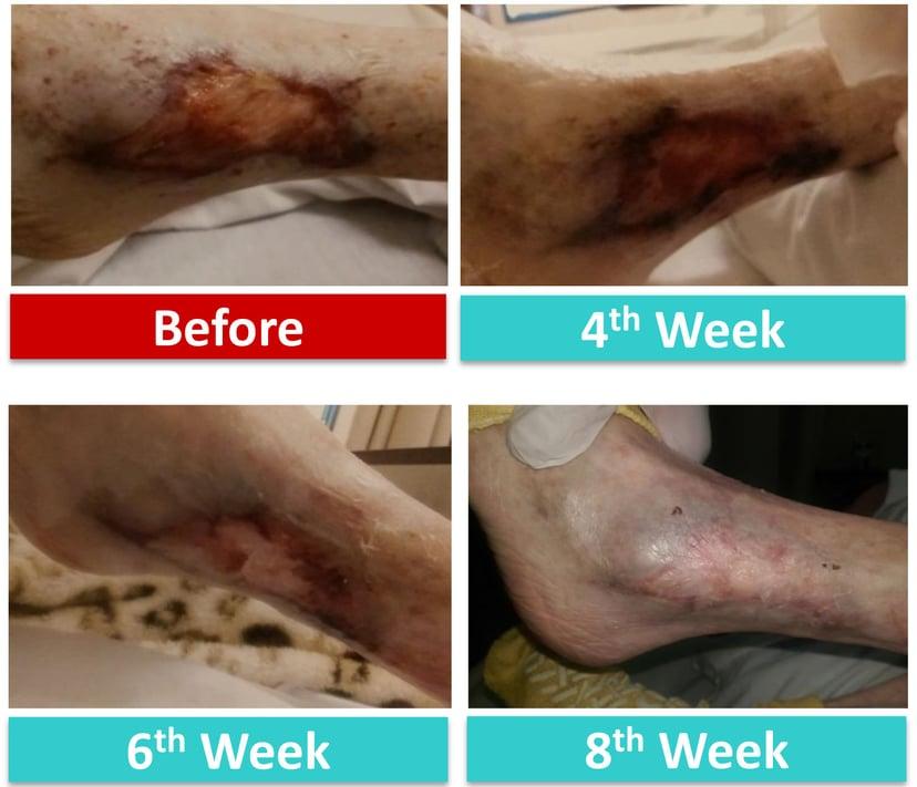 kocarbon ag silver dressing case study DM left leg wound