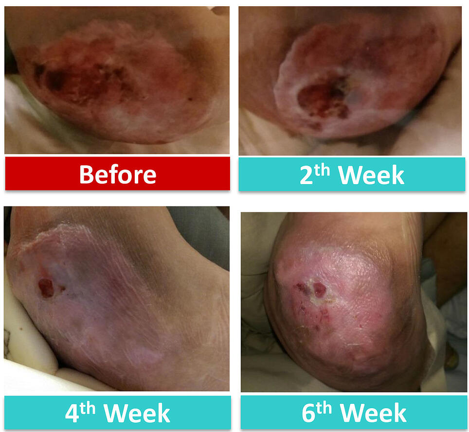 KoCarbon Ag Silver Wound Dressing Case Study 5: Right Lateral Ankle Pressure Ulcer