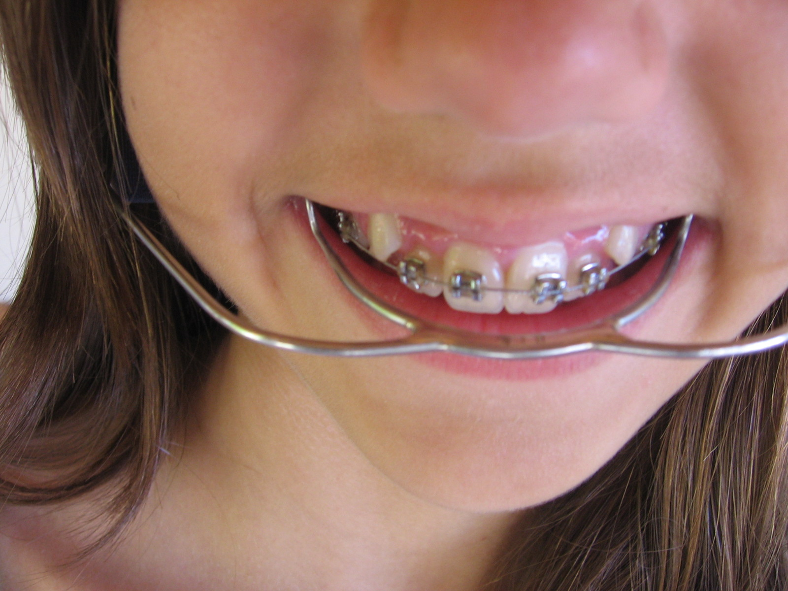 How To Determine Eligibility For Orthodontic Treatment Through Medicaid In  New Hampshire