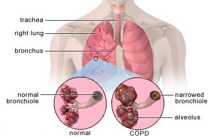 understanding the 4 stages of copd, Skeleton