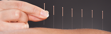 acupuncture-for-COPD-pain-management.png