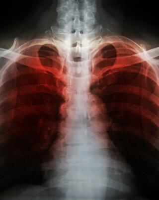 emphysema.jpg