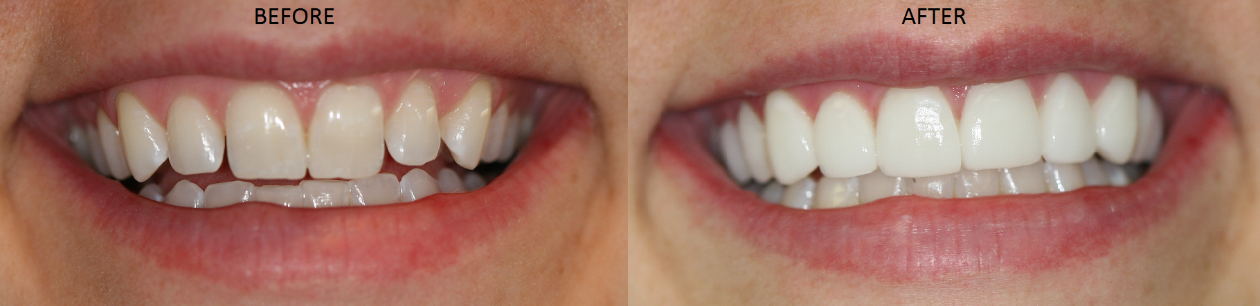 Dr Ann Soberays Patient Receives No Prep Porcelain Veneers And Crowns Are