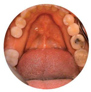 professional_work_image_mouth3
