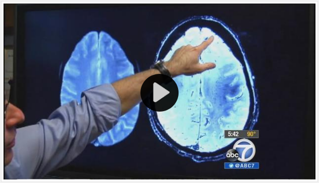 Study Proven To Reverse Alzheimer S Effects