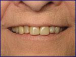 Porcelain Crowns Before | Samuels Dental Arts, P.C.