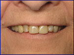 Porcelain Crowns Before | Samuels Dental Arts, P.C.