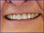 Porcelain Crowns After | Samuels Dental Arts, P.C.