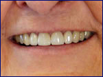Porcelain Crowns After | Samuels Dental Arts, P.C.