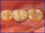Dental Implants | Samuels Dental Arts | Gettysburg PA
