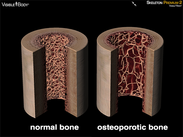 Osteoporotic bone osteoporosis bone damage brittle bones compact bone