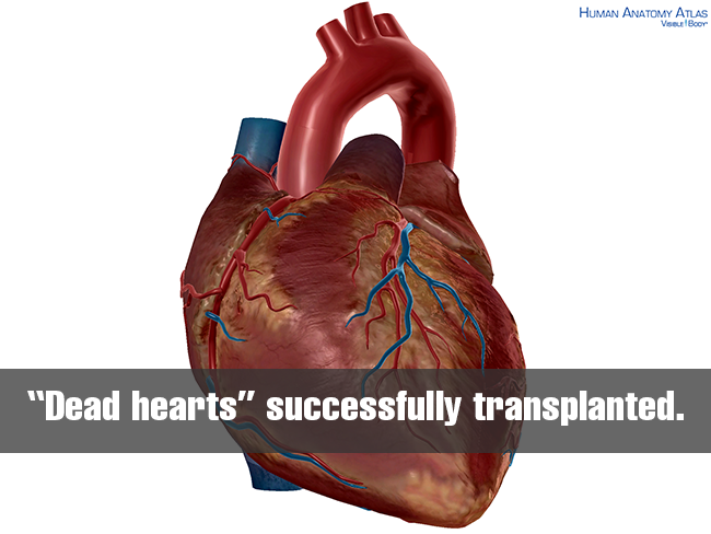 Dead-hearts-successfully-transplanted-in-australia