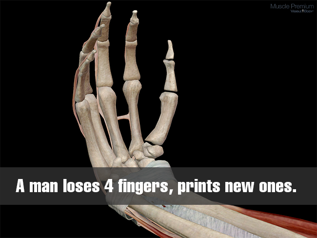 Man-loses-fingers-3d-prints-new-ones