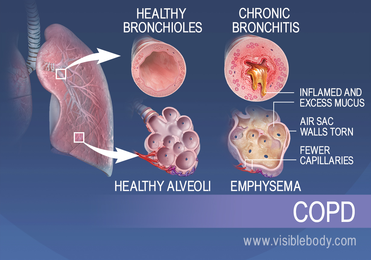 an introduction to asthma a disorder that interferes with the lungs and the airway to the lungs Emphysema slowly destroys air sacs in your lungs, which interferes with  or  perhaps some other condition, such as asthma or heart failure.