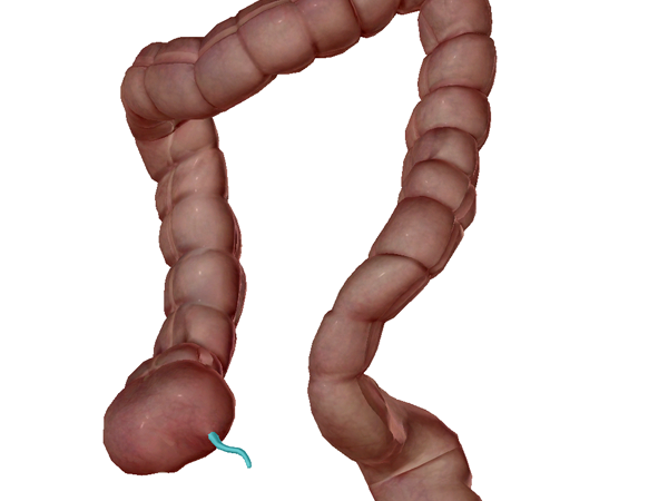Appendix appendectomy colon large intestine digestive ap vocab