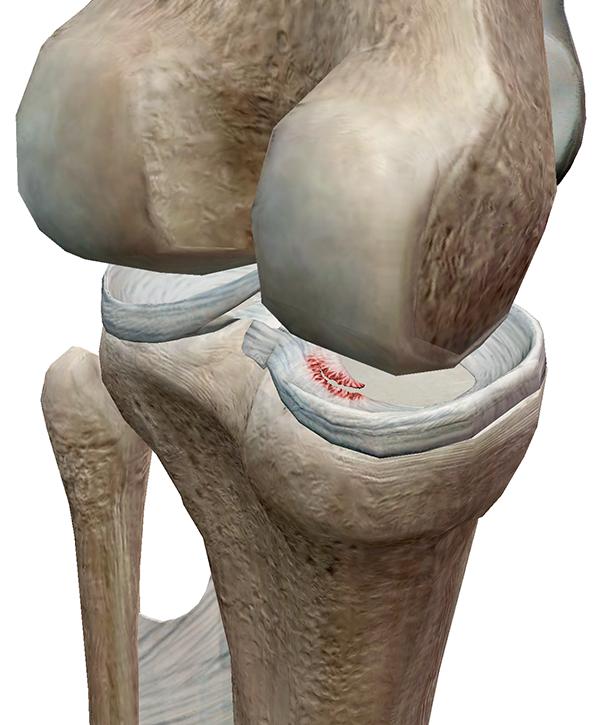 Foot-Pathology-2.png