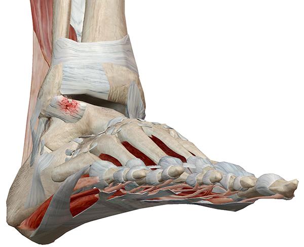 Foot-Pathology-3.png