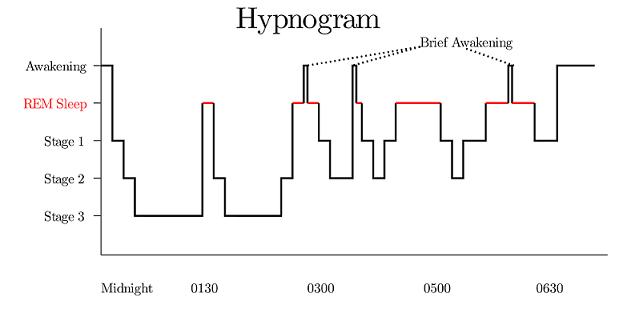 hypnogram_updated.png