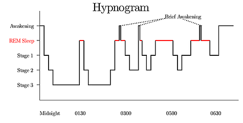 hypnogram_updated.png