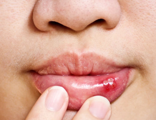 Dental Health and Canker Sores