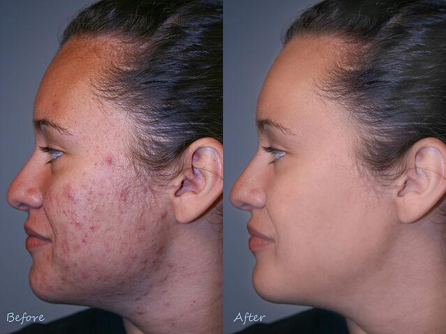 feature vs benefit acne example