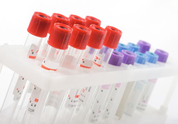 8 Criteria When Choosing a Cancer Tissue Bank