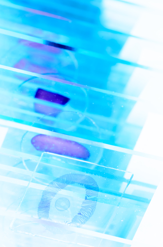 5 Clinical Indications for Using FFPE Tissue Samples