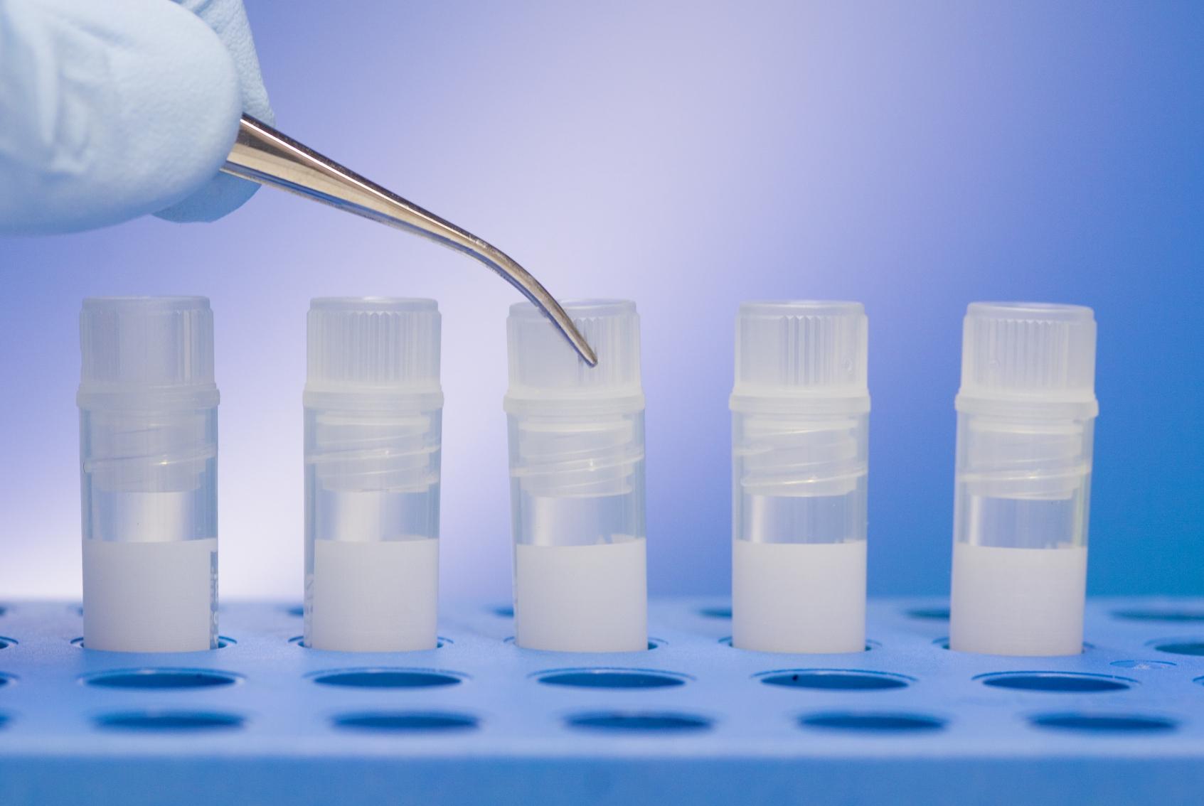 donor-spermi-trebovaniya