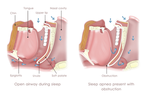 obstructive-sleep-apnea.jpg