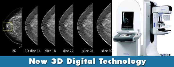 digital mammography and tomosynthesis for breast cancer diagnosis A stereo digital mammogram combines two digital breast x-rays taken from different angles how do mris aid in breast cancer diagnosis and screening article.