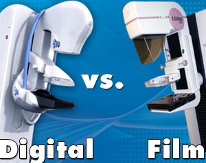 digital breast tomosynthesis versus digital mammography This new 3d mammography significantly increases radiation exposure film mammogram a single digital breast digital breast tomosynthesis.