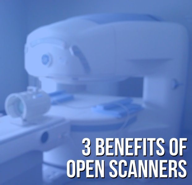 Benefits_of_Open_MRI