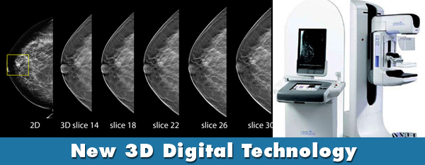 digital mammography tomosynthesis